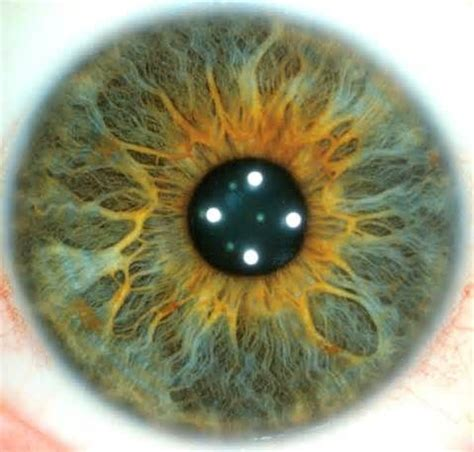 iris pattern types 17 best images about iris patterns iridology on