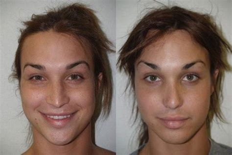 transgender before and after before and after facial plastic surgery miami fl