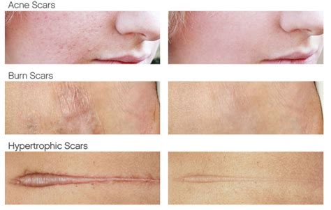best treatment for surgical scars best scar after surgery cosmetic plastic surgery
