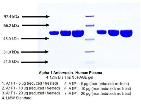 alpha 1 antitrypsin im stuhl alpha 1 antitrypsin human plasma 7294 biovision inc