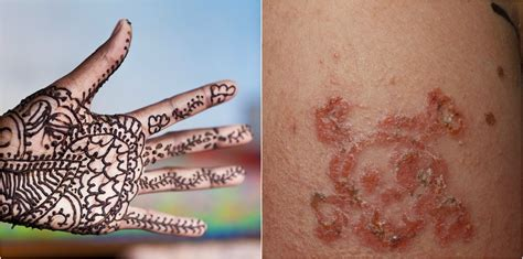 henna tattoo ingredient is allergen of the year 10 year boy suffers allergic reaction to black henna
