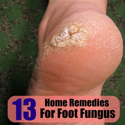 13 home remedies for foot fungus health