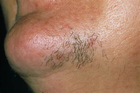 excess pubic hair hirsutism