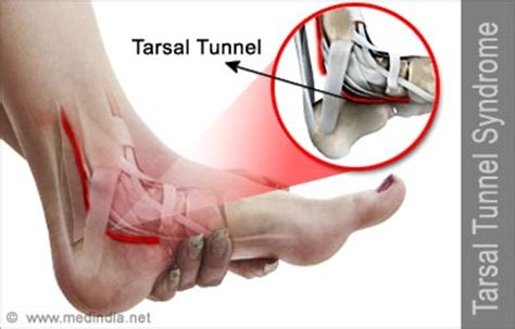 dolore al piede parte interna tarsal tunnel causes symptoms signs diagnosis