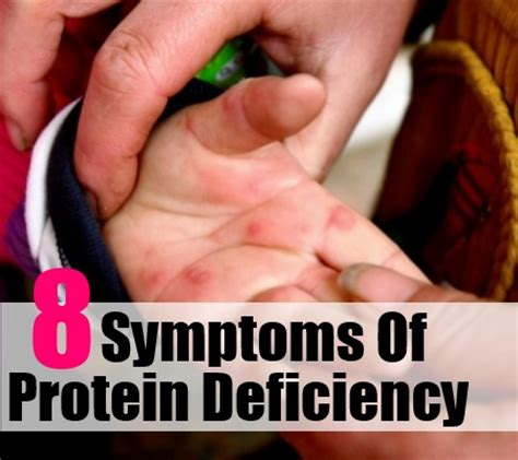 c protein deficiency protein deficiency