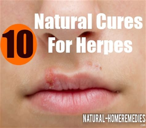 at home treatments for acne cure for herpes step