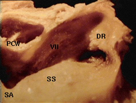 Temporal Bone Dissection Guide temporal bone study guide
