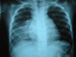 imagenes niños enfermos neumon 237 a en ni 241 os y beb 233 s todo sobre la pulmon 237 a