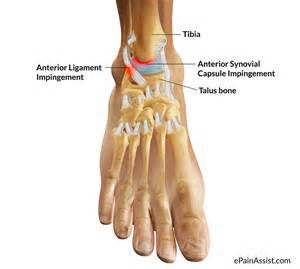 Interior Deltoid What Is Ankle Impingement Symptoms Causes Treatment