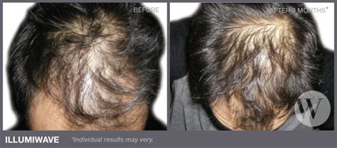 what hairstyle increases thickness hair new growth on scalp