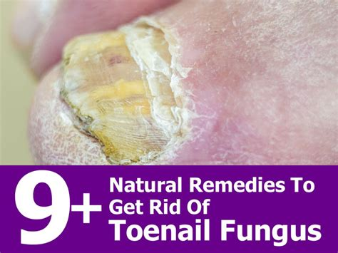 nail bed fungus 9 natural remedies to get rid of toenail fungus