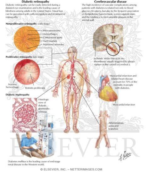 healthy fats en espanol consequences of diabetes mellitus when will type 1