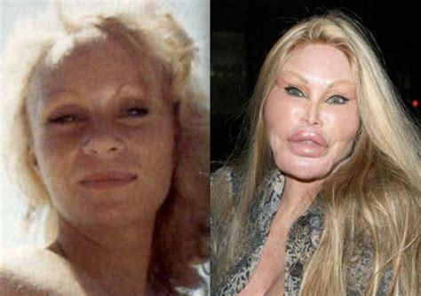 50 extreme celebrity plastic surgery photos you won t believe
