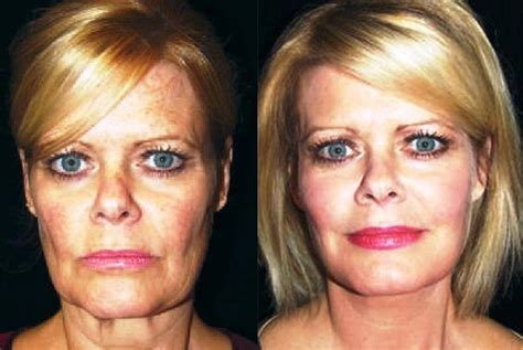 Is A Mini Lift A Facelift Alternative by What To Expect As Your Ages Castleknock Cosmetic