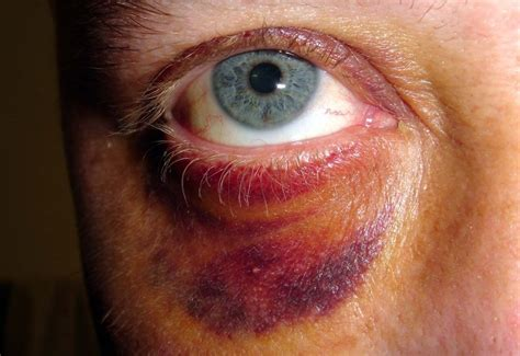 black eyes to help improve the quality of the lyrics visit here