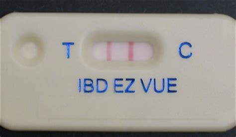 Lactoferrin Stool Test by Schebo Biotech