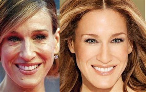 marys extreme makeover face nose and body celebrity before and after plastic surgery star makeover