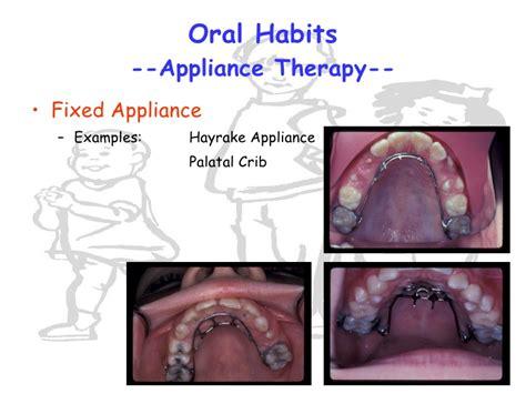 Palatal Crib Appliance by Habits