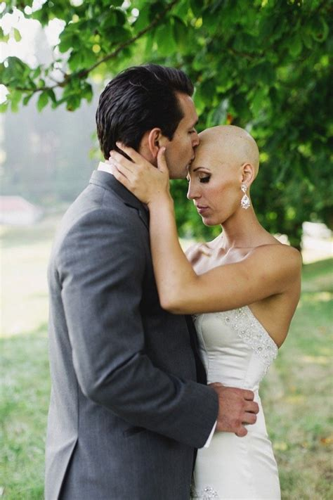 brides with alopecia 18 best alopecia more common than you think images on