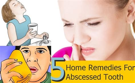 5 abscessed tooth home remedies treatments and