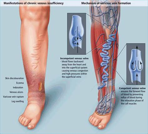 varicose veins treatment symptoms causes pictures varicose veins symptoms causes and treatment