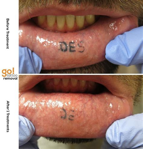 inner lip tattoo removal 825 best removal in progress images on