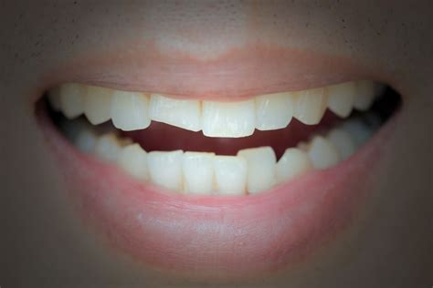 cosmetic dental bonding dentist  murray ut white