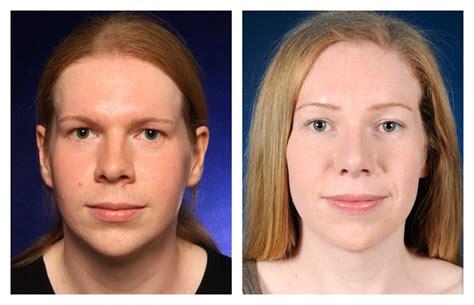 mtf ffs facial feminization surgery before and after emily before and after facial feminization surgery 2pass