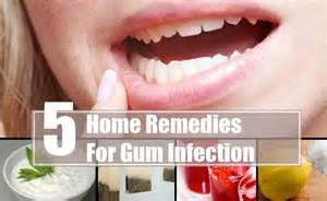 home remedies for sore gums five amazing home remedies for gum infection