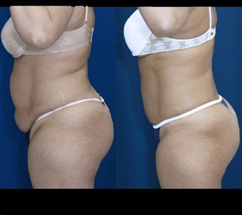 Detox After Smart Lipo 14 best smart lipo before and after images on