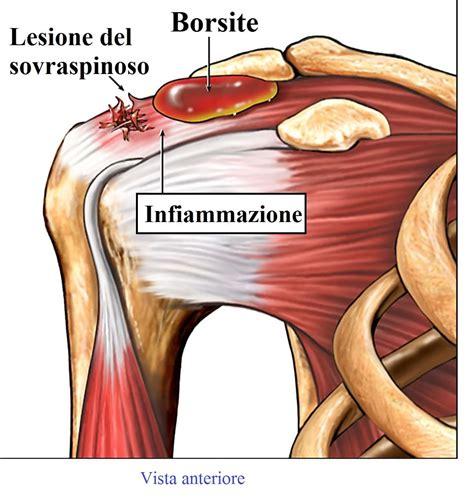 dolore sopra la testa dolore alla spalla destra o sinistra alla scapola cause