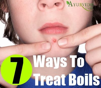 Home remedy for yeast infection in dogs skin minecraft ... How To Treat Boils On Buttocks At Home