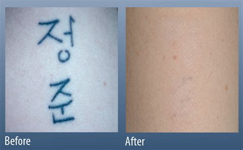 main line tattoo removal line for laser surgery in ardmore pa