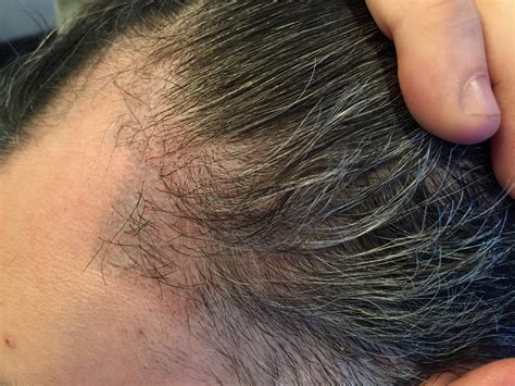 hair losing pigment at temples hair transplant to temples archives hair transplant los