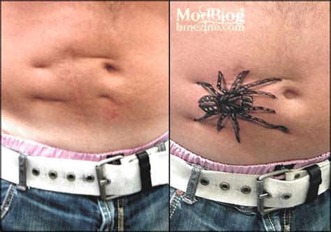 tattooing over scars scar tissue picture gallery section