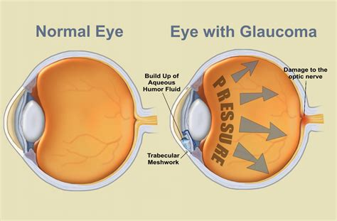 Genetic Eye Disorders That Cause Blindness eye diseases and disorders glaucoma humaneyeproject