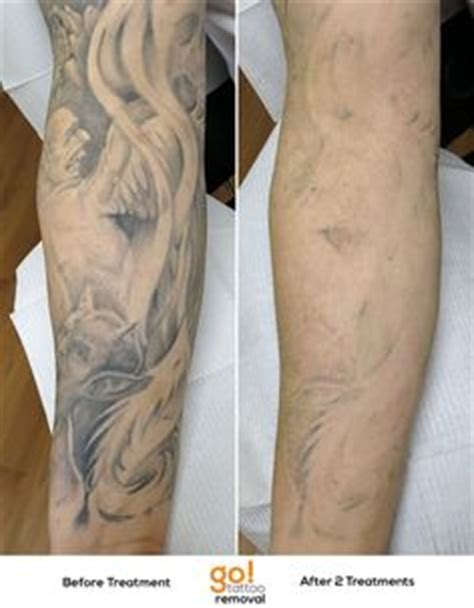 full sleeve tattoo removal 1000 images about removal in progress on