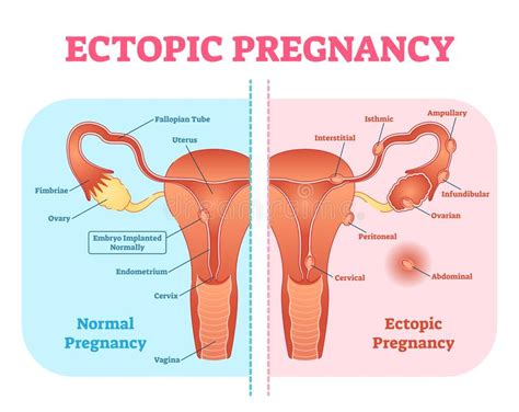pregnancy diagram ectopic pregnancy or tubal pregnancy diagram with