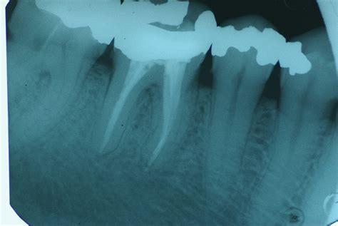 carie interna sintomi studio dentistico benvenuti 187 archive 187 endodonzia