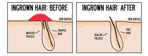 ingrown hair diagram ingrown hair after waxing gallery