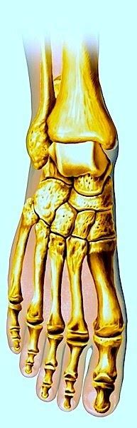 dolore al piede parte interna alluce valgo sintomi tutore intervento chirurgico e
