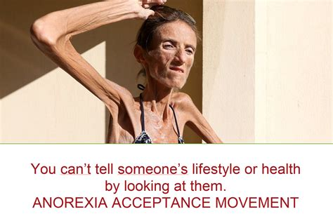 Anorexia Meme - anorexic people meme pictures to pin on pinterest pinsdaddy