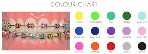 braces color chart braces colour chart oremdentist braces braces colors