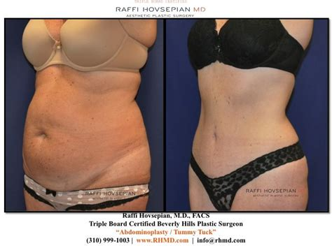 c section and liposuction lipo after c section 28 images before and afters