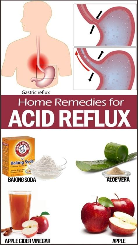 home remedies for heartburn and acid reflux active home
