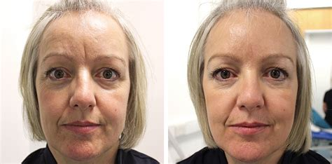 Botox Also Search For Botox Before And After