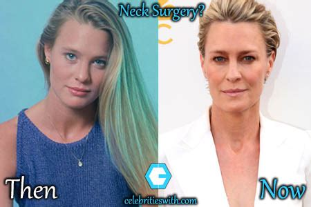 robin wright scar on neck robin wright throat scar robin wright neck surgery plastic
