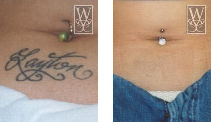 tattoo removal baton rouge removal gallery williamson cosmetic center