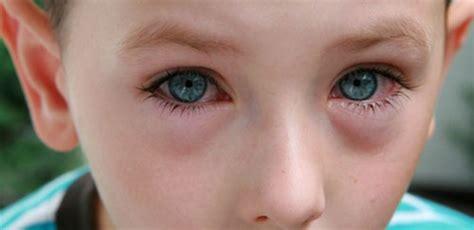 imagenes ojos con conjuntivitis pediatricblog hablemos sobre sobre los distintos tipos
