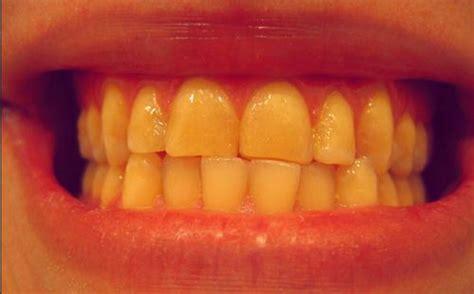 Obat Cataflam Sakit Gigi cara menghilangkan rasa sakit dengan obat sakit gigi uh